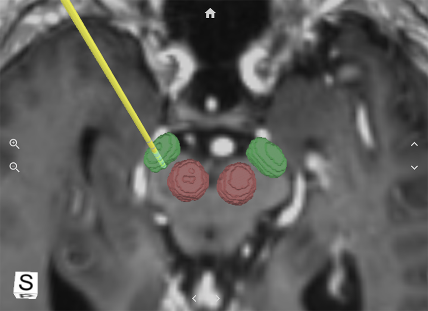 A 3D model with specific brain regions highlighted and a surgical node implanted