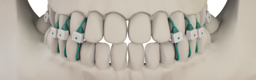 Minne Ties, made with a medical grade flexible polymer, securely closes the jaw with less discomfort than metal wires and fewer dental hygiene problems