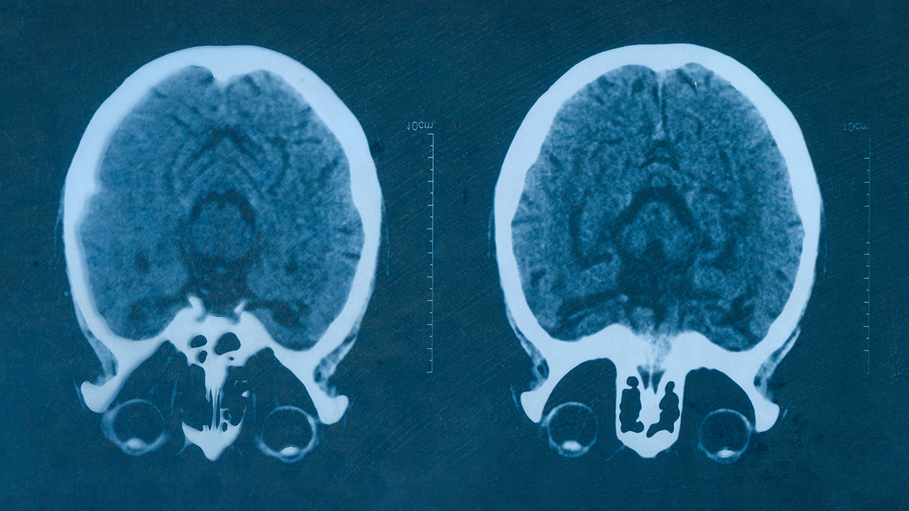 Two medical scans of a brain
