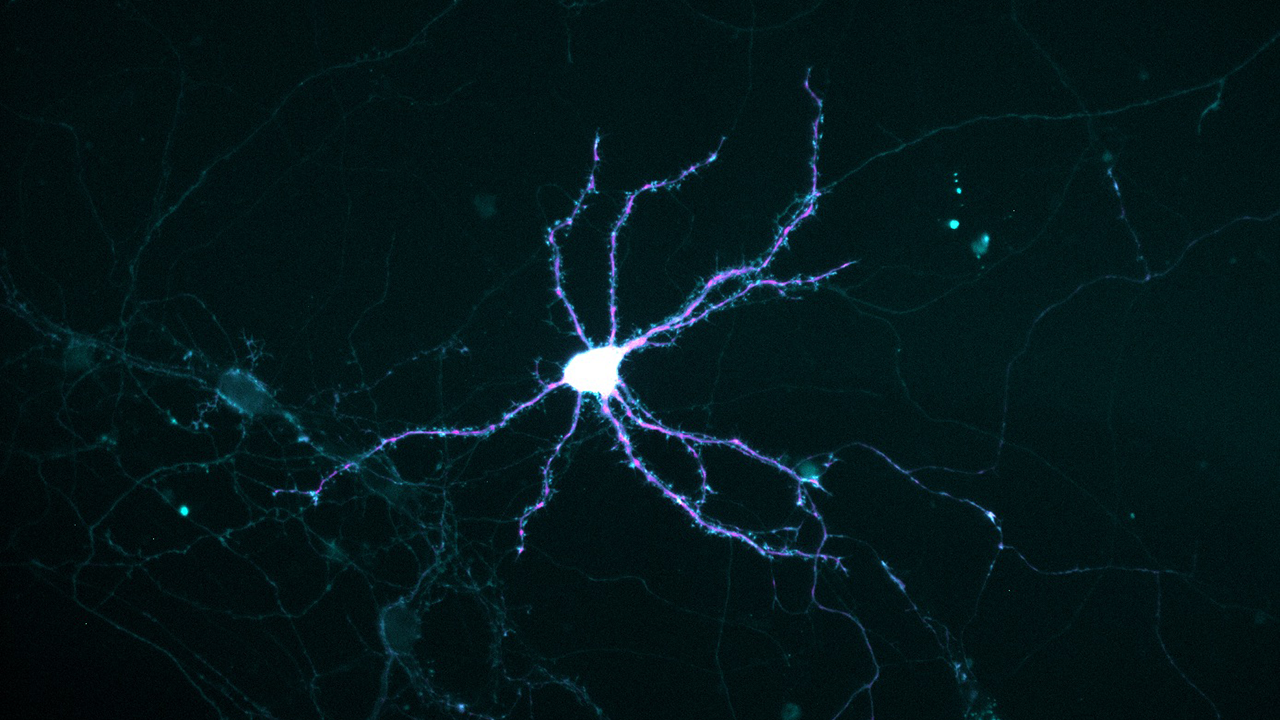 Dendrites in the brain