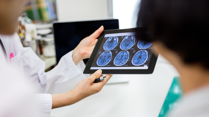 People in lab coats holding a device displaying MRI scans of the brain