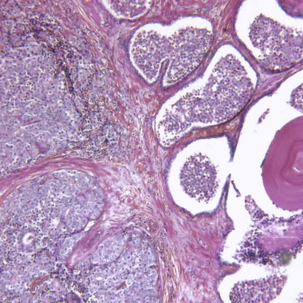 Breast cancer metastasis